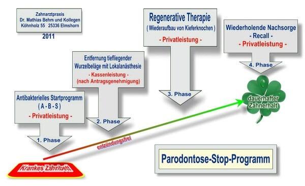 Parodontose-Stop-Programm