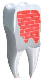 Zahn Stützmauer
